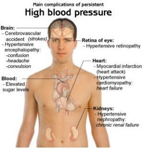 Hypertension complications