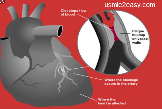 Ischemic Heart Disease Facts And  Overview